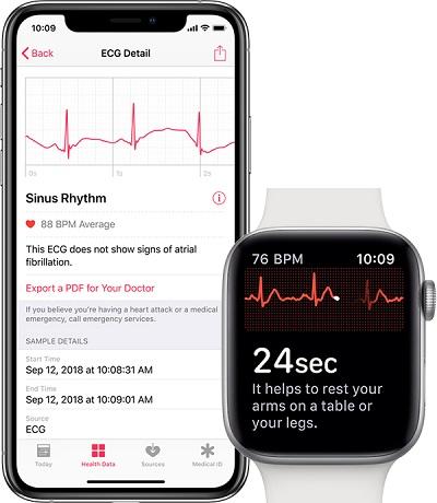 ECG Details on WatchOS